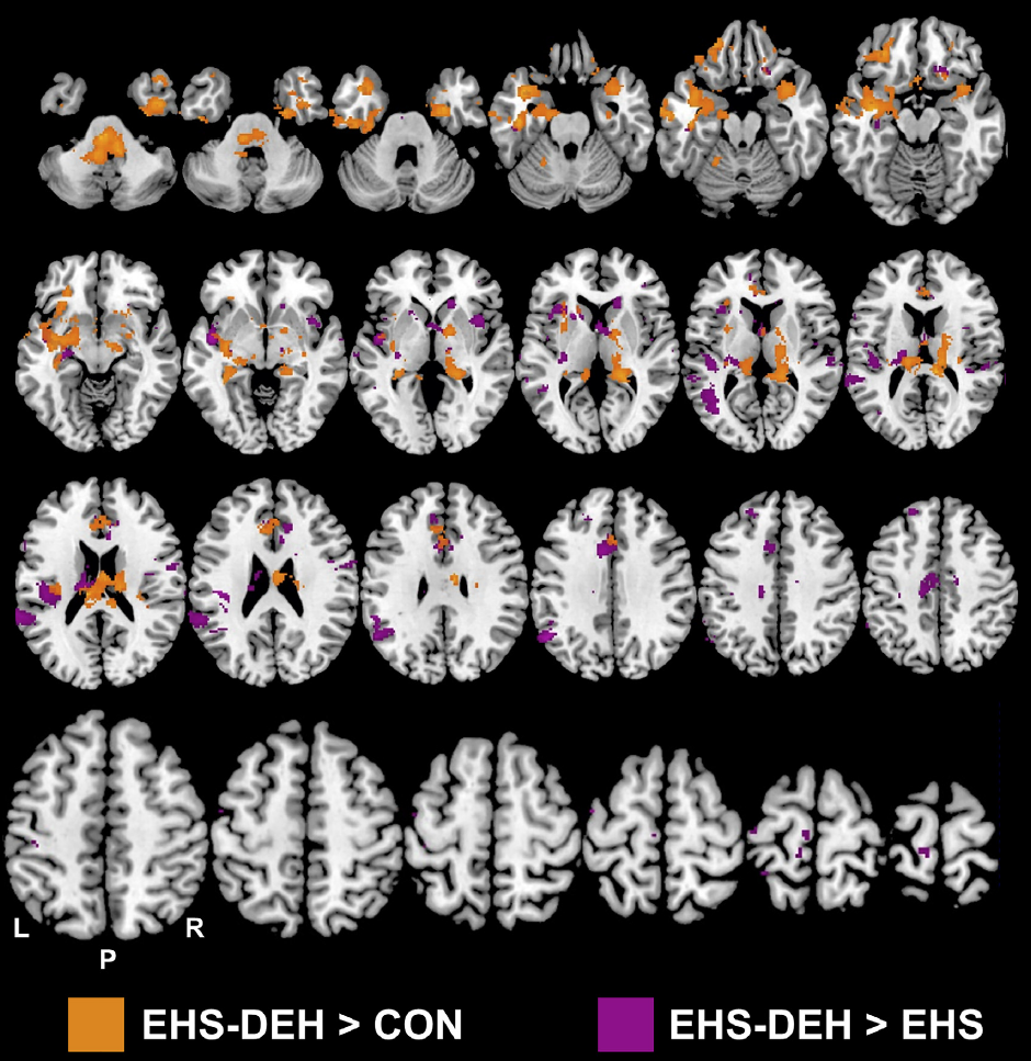 fMRI brain activity in dehydration
