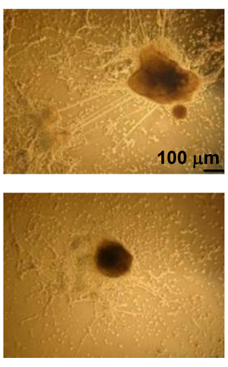 Stem cell neural differentiation impairment