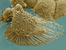 A dying cancer cell with filopodia stretched out to its right. The protrusions help cancer migrate. Stock NIH NCMIR image. The image does not display a cell treated in the Georgia Tech study. Credit: NIH-funded image of HeLa cell / National Center for Mic