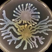 Pseudomonas aeruginosa (Photo by Steve Diggle/Georgia Tech)