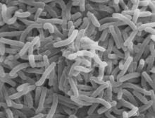 Vibrio cholerae bacteria (Photo Wikimedia Commons)